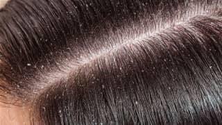Pellicules, cheveux et traitement naturel - Traitement..